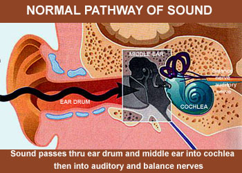 cochlear01