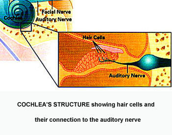 cochlear03
